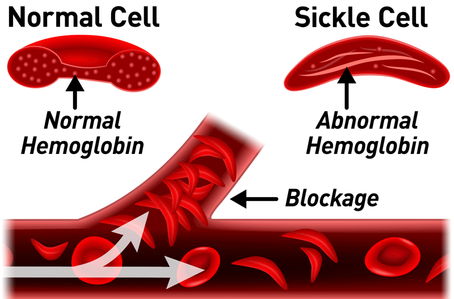 sickle-cell-normal-cell